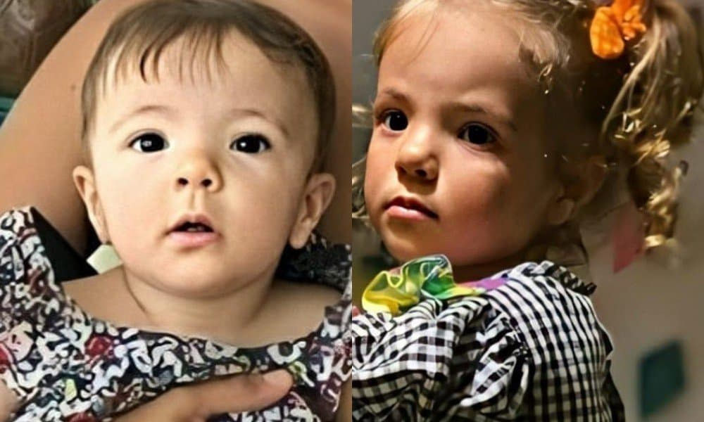 Antes e depois de uma das gêmeas de Ivete Sangalo