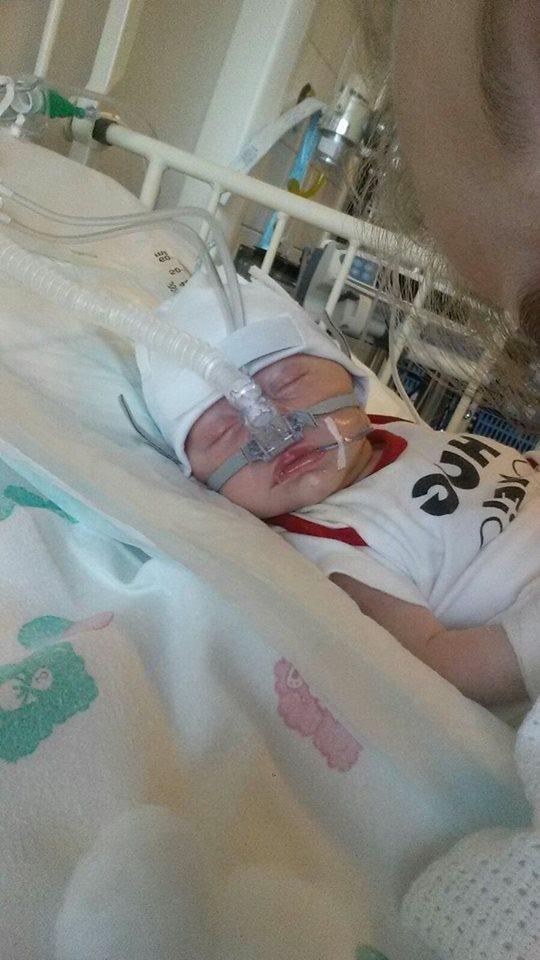O bebê teve outras complicações além da pele