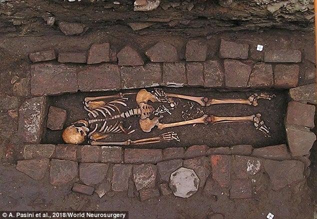 Veja agora a imagem do esqueleto encontrado com ossos de bebê