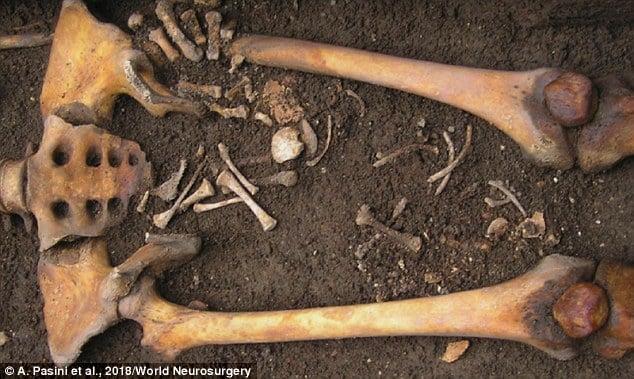 Veja os ossos do bebê que nasceu após sua mãe morrer