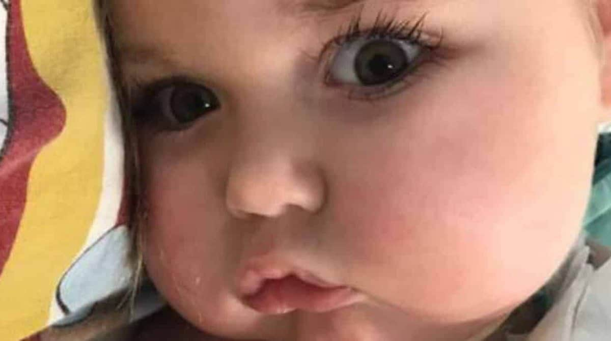 O pequeno bebê Jonatas que sofre com uma doença degenerativa rara