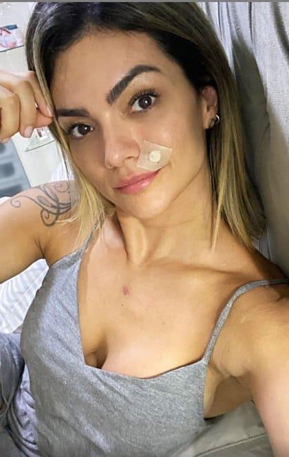 Kelly Key depois de ter retirado o câncer de pele