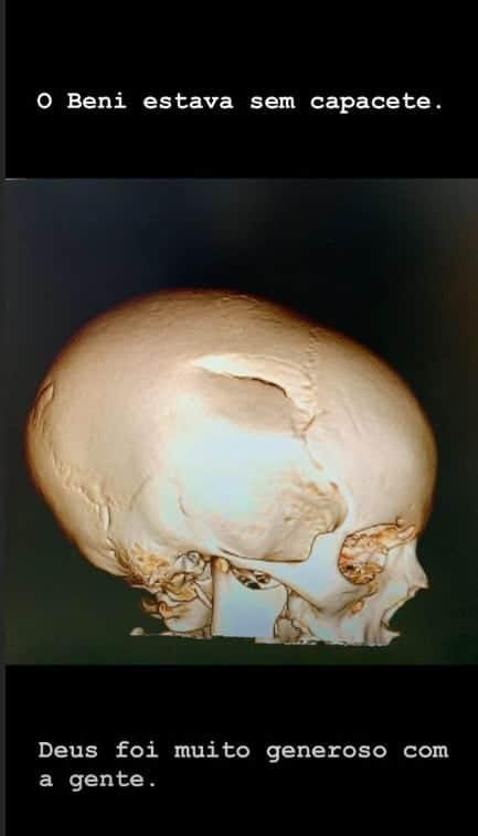 Tomografia do crânio do filho de Luciano Huck e Angélica