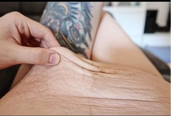 Veja como ficou a barriga da mãe Laura após o nascimento de seus gêmeos