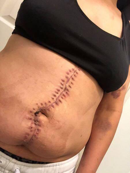 Mãe após cesárea de emergência de recém-nascido