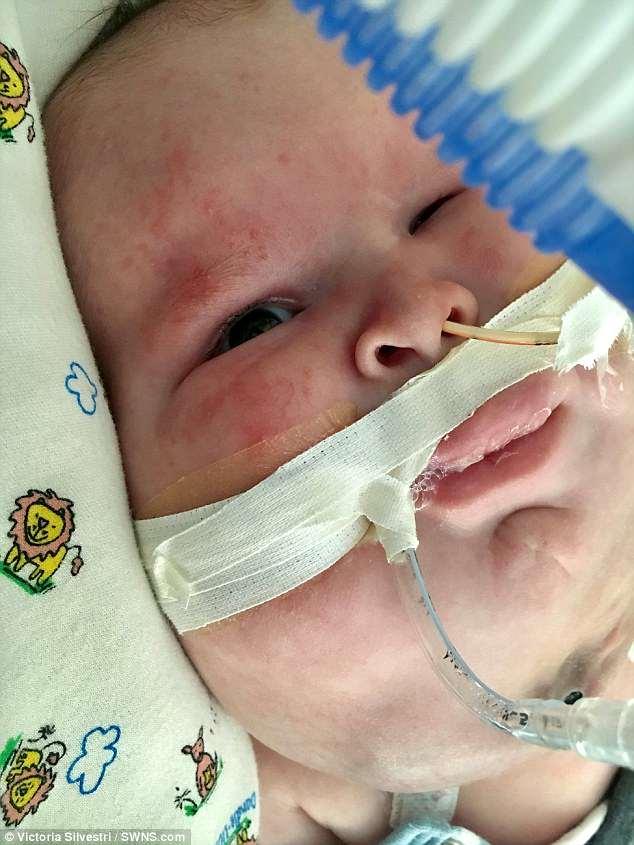 Gavin de três meses é incapaz de chorar ou de fazer qualquer outro som