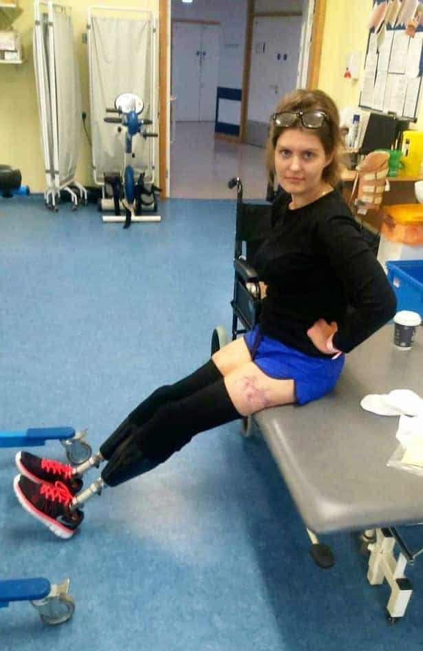 Aqui Magdalena Malec Já com as próteses das pernas