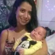 Veja a história desse bebê com microcefalia