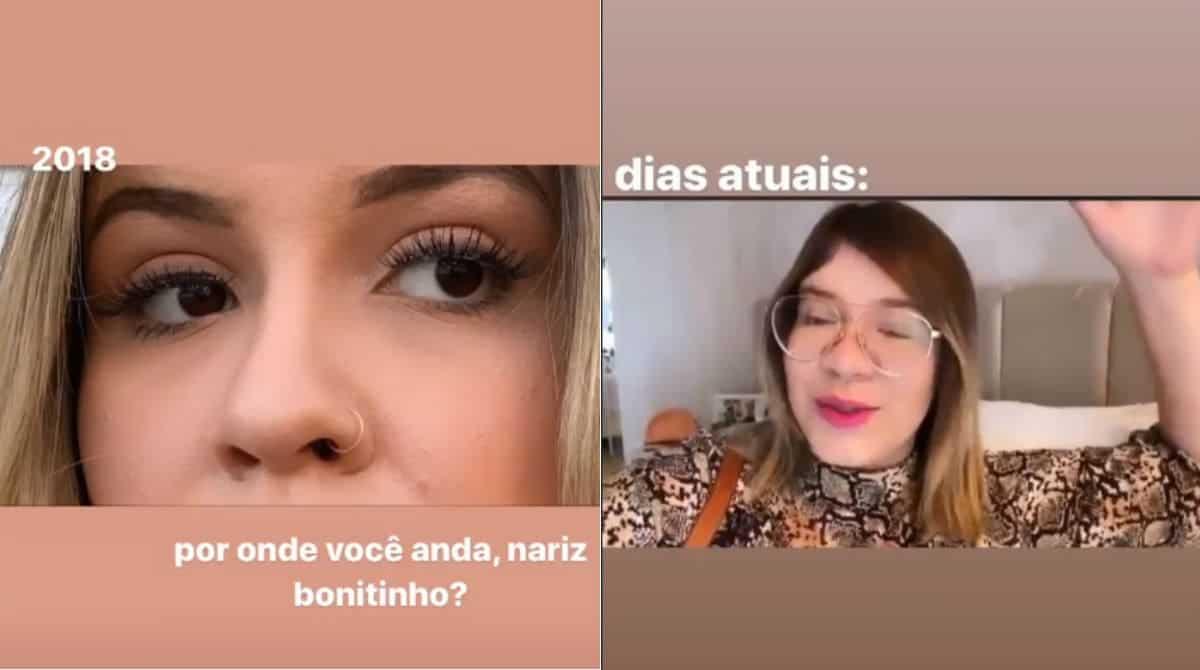Antes e depois da gravidez do nariz de Marília Mendonça