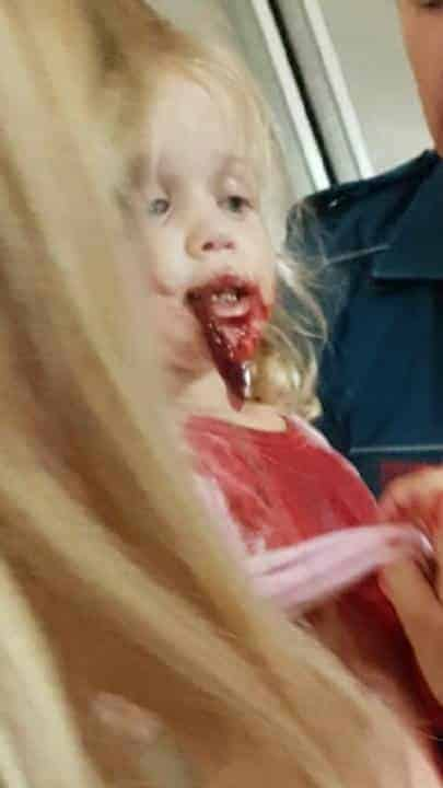 Evie perdeu muito sangue