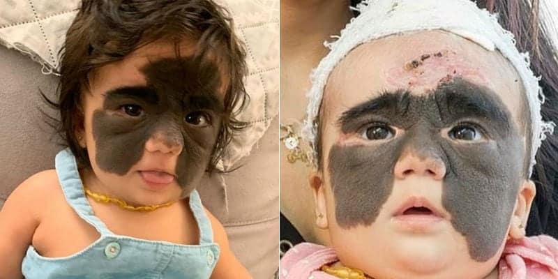 Antes e depois de menina após tratamento pra tirar mancha