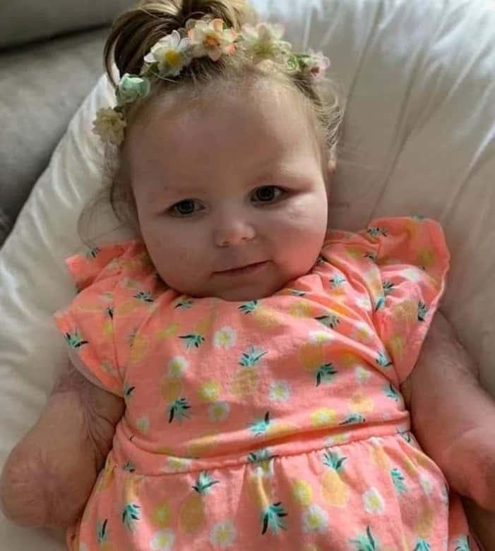A menina que sobreviveu ao grave caso de meningite