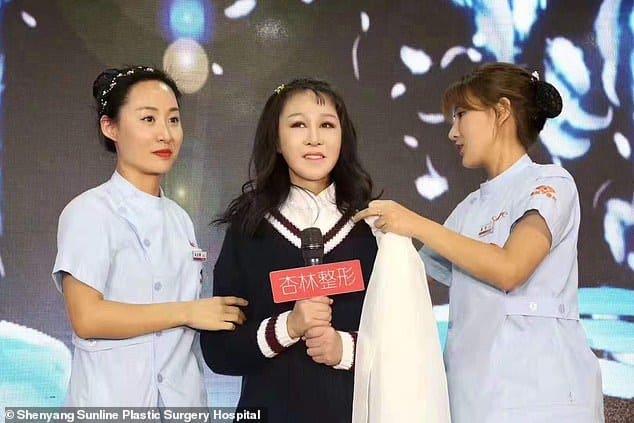 A menina depois de ter visto seu rosto após cirurgia
