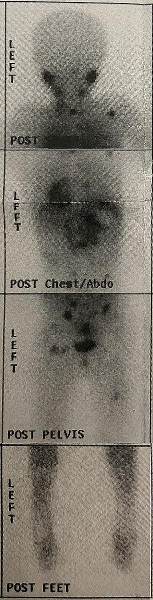 Exames mostravam que o menino tinha tumores do nariz aos joelhos