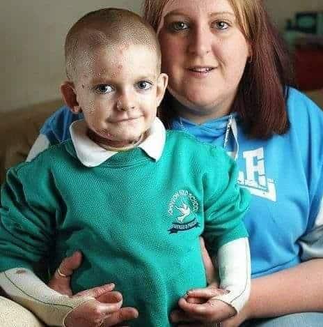 Mãe com menino que luta contra doença grave
