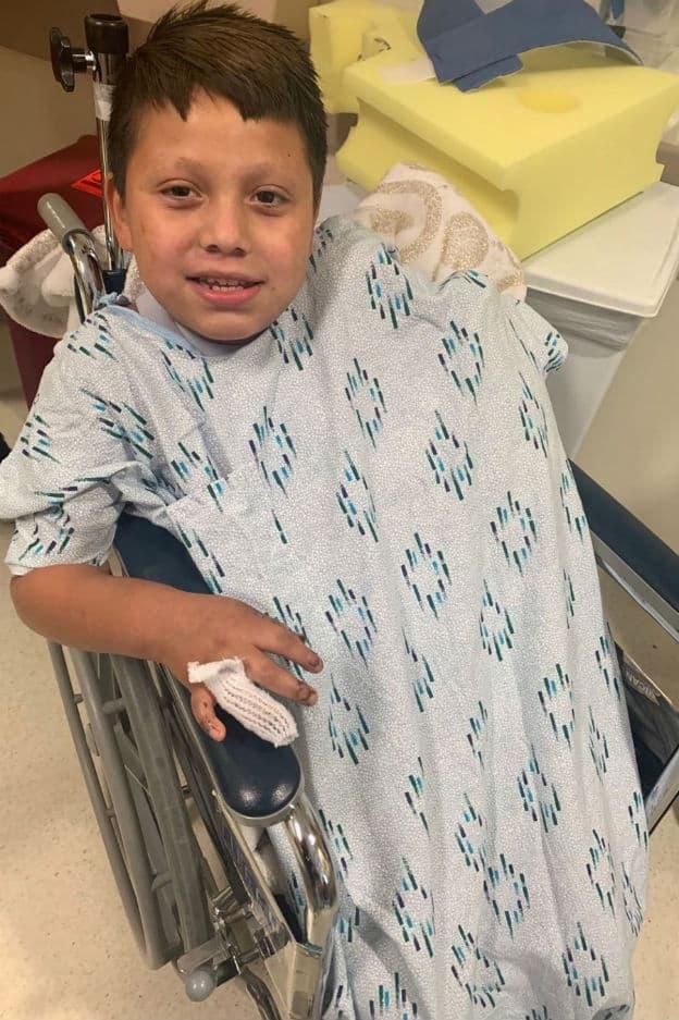 O menino está se recuperando no hospital após perder a mão