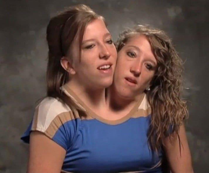 Abigail e Brittany Hensel são o caso mais famoso de gêmeos siameses no mesmo corpo, mas não se sabe se é o caso do menino
