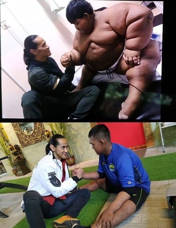 Antes e depois de menino considerado o mais gordo do mundo