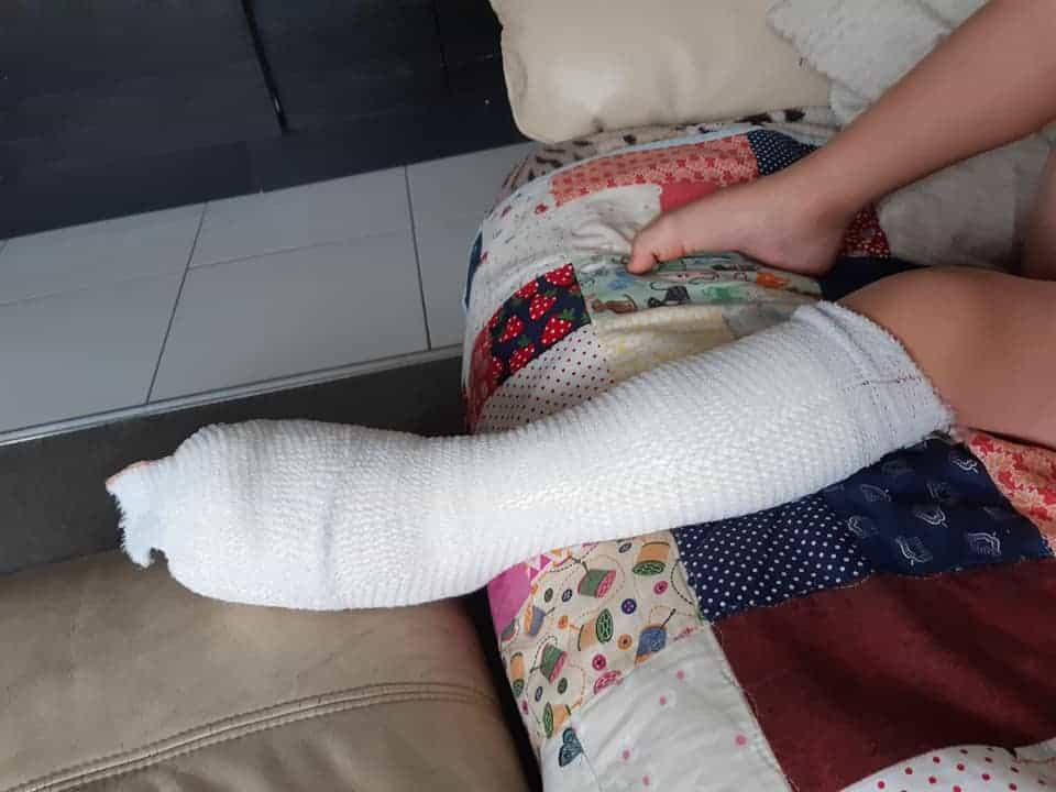 Menino de cinco anos com pé enfaixado após queimadura