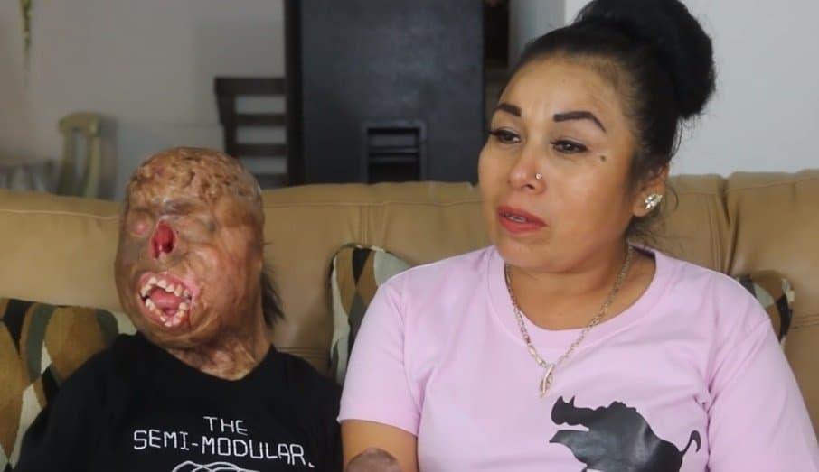 O menino que sofreu as queimaduras ao lado de sua mãe