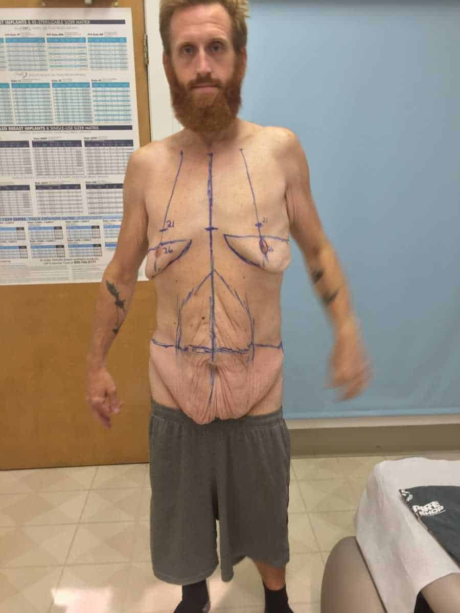Zach Moore com marcações para uma operação