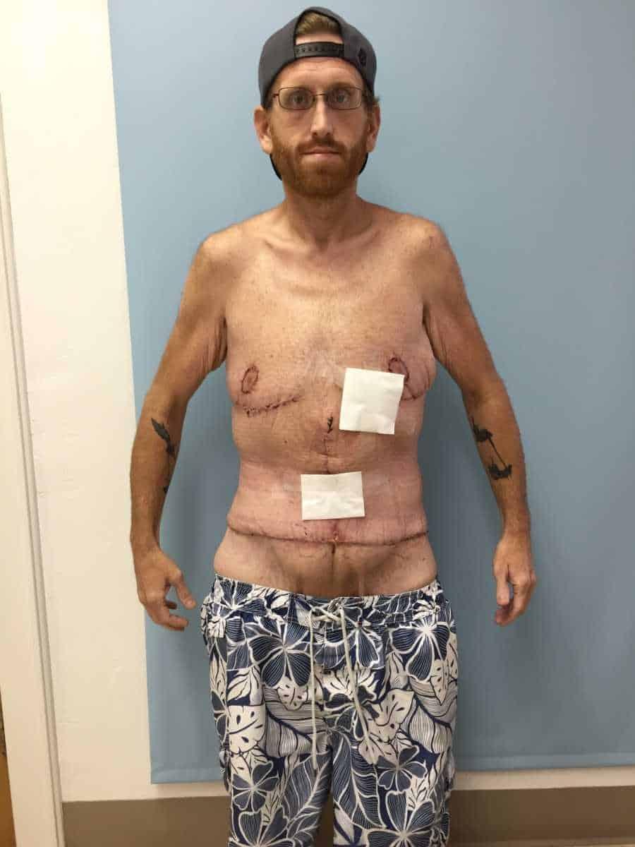 Depois da retirada de pele Zach Moore fez essa foto