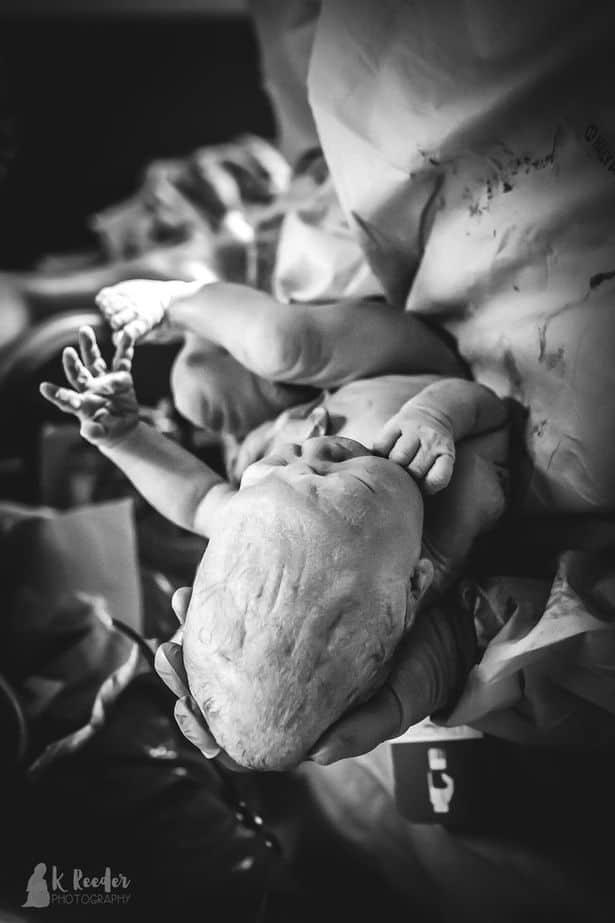 parto-nascimento-cabeca3