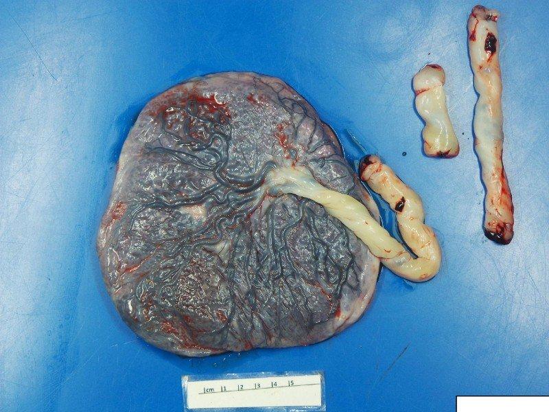 Placenta de uma das gestantes com coronavírus