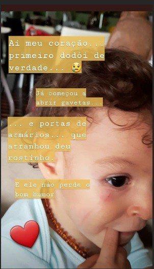 Sheron Menezzes postou essa imagem após seu filho Benjamim ter machucado o rosto