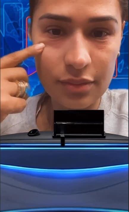 Alergia de Simone durante a gestação