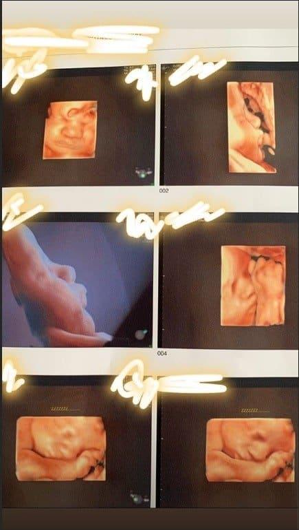 Mais imagens do ultrassom da filha da cantora Thaeme