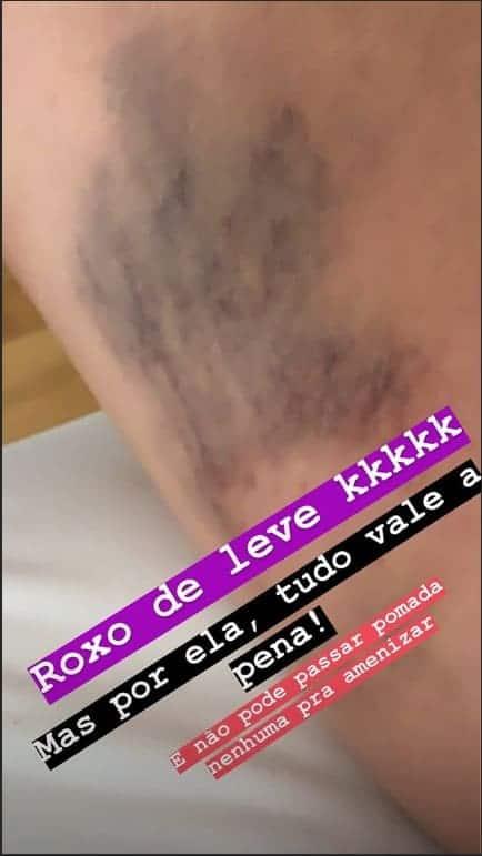Thaeme Mariôto mostrou um de seus hematomas na gravidez