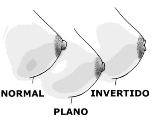 Saiba quais são os tipos de mamilos e a relação deles com a amamentação