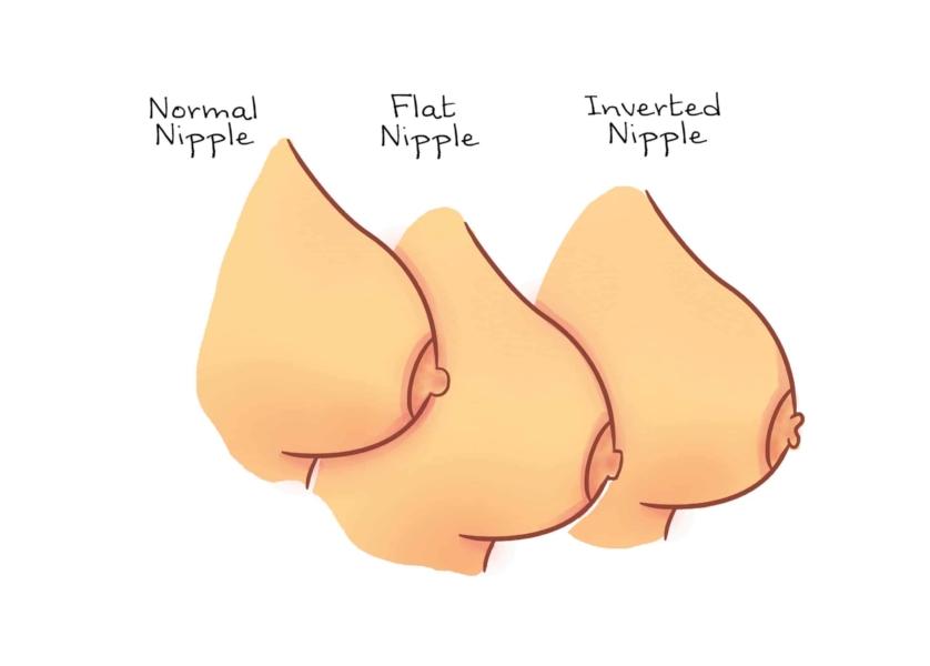 Desenho mostra como são três tipos de mamilos