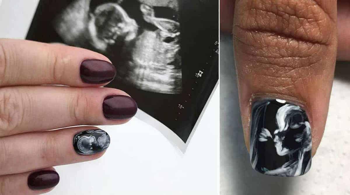 Grávida pinta ultrassom nas unhas e inspira outras mamães