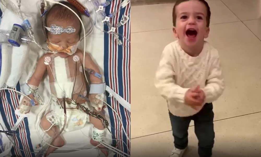 Bebê de Jimmy Kimmel quando nasceu e atualmente