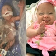 A bebê ficou cerca de 100 dias internada na UTI Neonatal