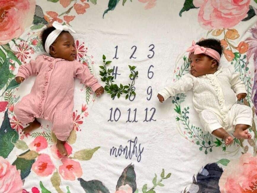 Após uma cirurgia, a bebê teve alta e foi para casa encontrar a irmã gêmea
