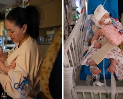 A cirurgia das gêmeas durou mais de 24 horas