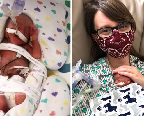 O bebê nasceu prematuro