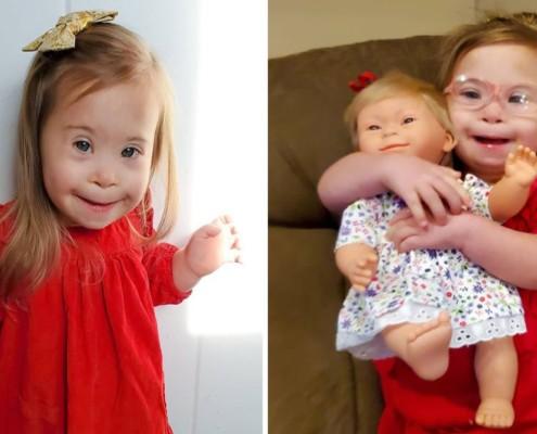 A menina nasceu com Síndrome de Down