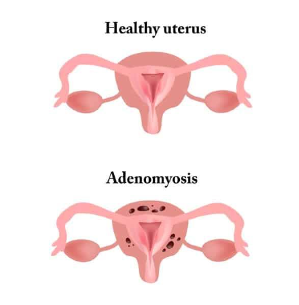 Diferença de um útero saudável de um com adenomiose uterina