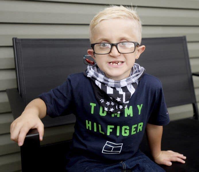 Ao longo da vida, o garoto já passou por mais de 15 cirurgias