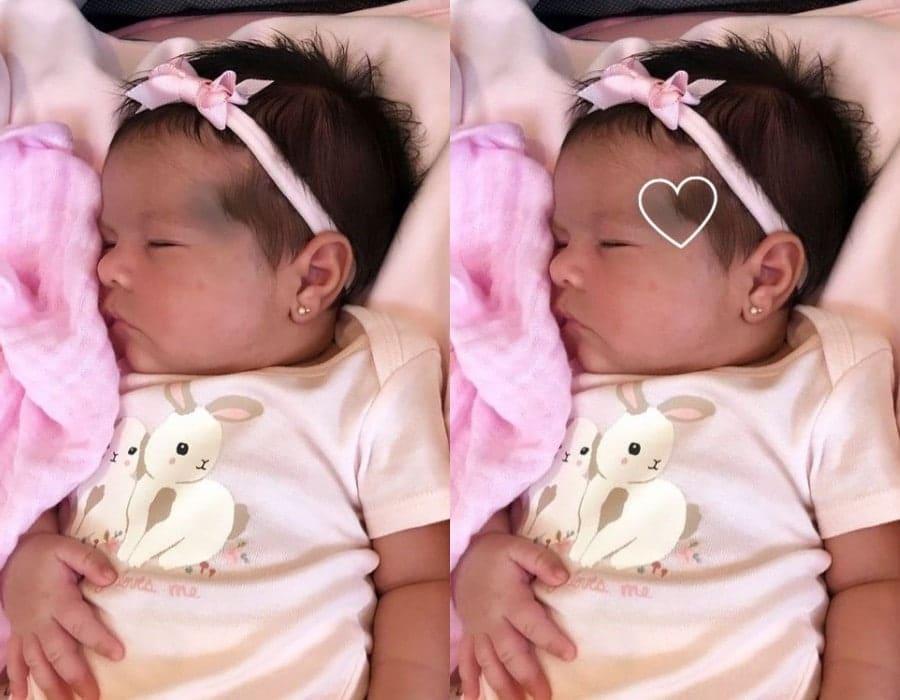 Bebê de Simone com a mancha em forma de coração