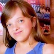 Rafaella Justus mostrou a transformação na cor de seus olhos